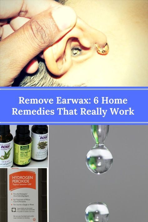 Remove Earwax: 6 Home Remedies That Really Work