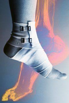How to Strengthen Leg Muscles After a Broken Foot Heals - Woman