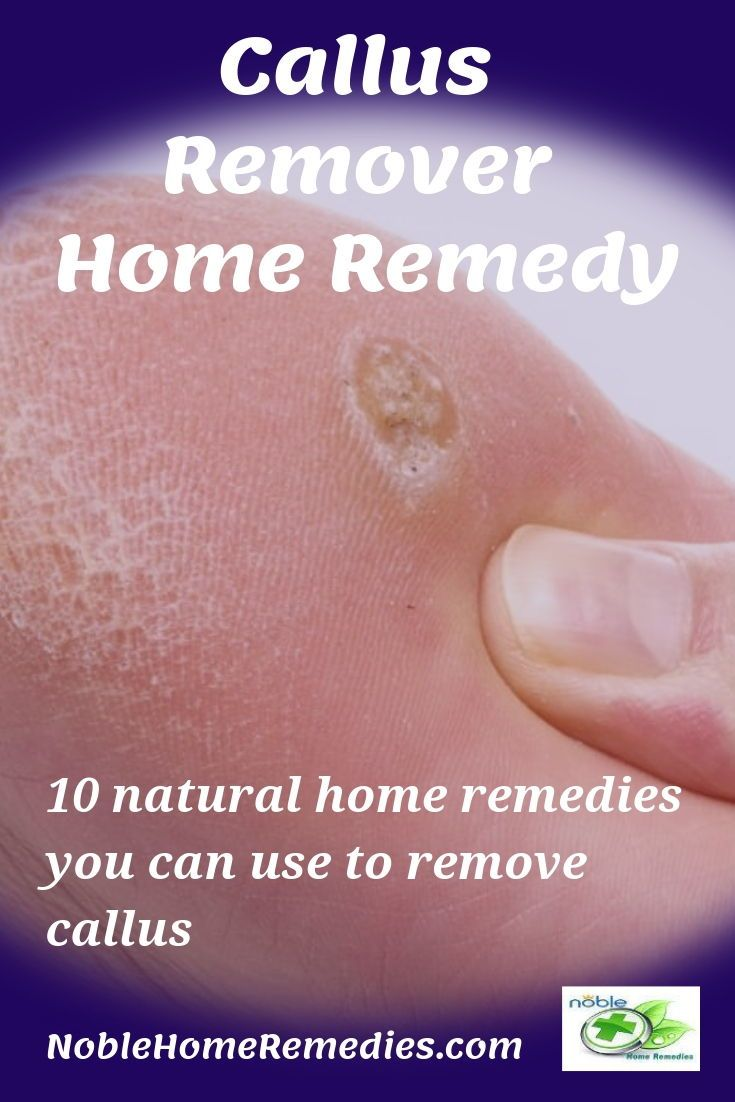 11 Best Callus Remover Home Remedies Callus Removal Foot Remedies Remedies