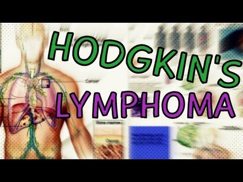 Hodgkin's Lymphoma - Types - Symptoms - Staging - Treatment - Diagnosis  Hodgkins Lymphoma Explained - WATCH VIDEO HERE -> http://bestcancer.solutions/hodgkins-lymphoma-types-symptoms-staging-treatment-diagnosis-hodgkins-lymphoma-explained    *** lymphoma cancer causes ***   In this video, we look at Hodgkins Lymphoma, which is a type of white blood cell tumor. We look at the causes, types, symptoms, and diagnosis of Hodgkin's lymphoma. We also look at the techniques f