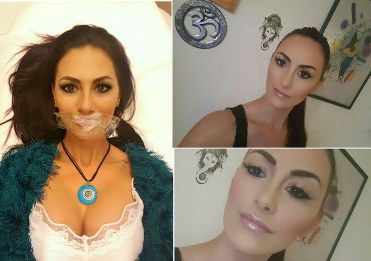 Egy kis optikai tuning :) A szájfeltöltésről sok nőnek még mindig a kacsaszáj jut az eszébe. Alaptalanul. Mit szólsz hozzá? Szép lett?