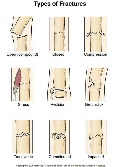 Fractures- open closed. FOOSH-colle's, greenstick, scaphoid, snuffbox tenderness.