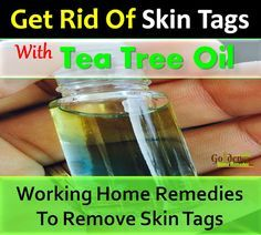 Tea Tree Oil For Skin Tags: How To Remove Skin Tags With Tea Tree Oil, Effective Home Remedies For Skin Tags, Skin Tags Causes, Syptoms And Treatments For Removing Skin Tags, How To Get Rid Of Skin Tags