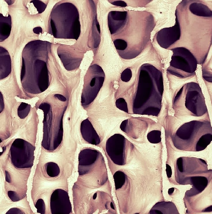 Human bone under Scanning Electron Microscope : Low power SEM images, showing normal bone architecture in the third lumbar vertebra of a 30 year old woman (x20)