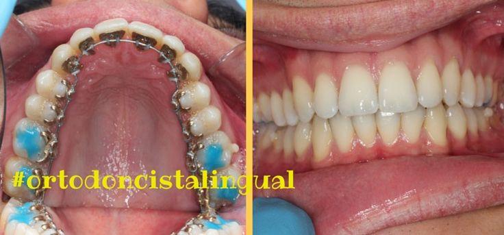 ¿Porqué ortodoncia lingual no lo puede realizar cualquier dentista? La ortodoncia lingual de Incógnito es actualmente el sistema más avanzado y estético de ortodoncia y en Clínica Ferrus & Bratos somos especialistas en Ortodoncia Invisible para adultos. ¿Quieres saber más acerca de este tratamiento? Aquí te lo contamos.