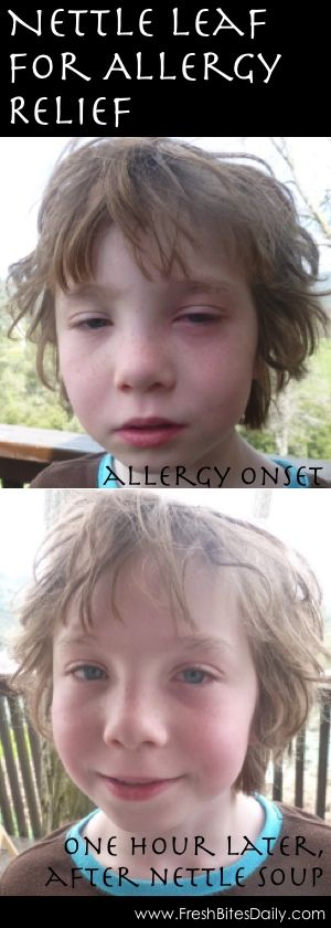 Nettle for Allergy Relief at FreshBitesDaily.com ~have worked with Nettle for allergies many years! yes, it works very well, especially for children!~
