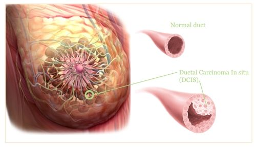 Dcis mayo clinic breast cancer
