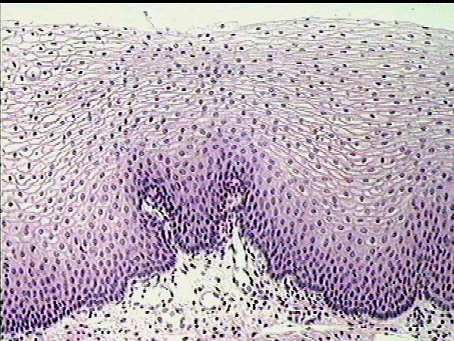 Stratified Squamous Epithelium from the lining of the Esophagus