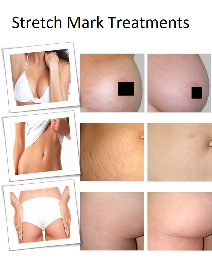 Glycolic peel works on stretch marks by increasing collagen production, says Baumann. Glycolic acid can also be administered in higher doses by a dermatologist. Treatment typically costs around £100 and requires three or four office visits before results will appear.  However, it is now possible to buy most of the glycolic peel solution online at much lower price and do the diy peel.