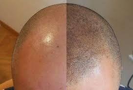 Con esta técnica se pueden corregir cejas, resaltar ojos y labios y hasta mejorar el aspecto de una calvicie.