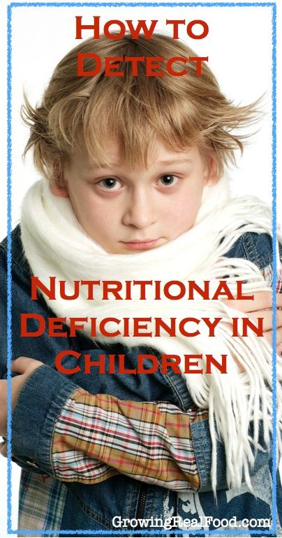 How to Detect Nutritional Deficiency In Children |