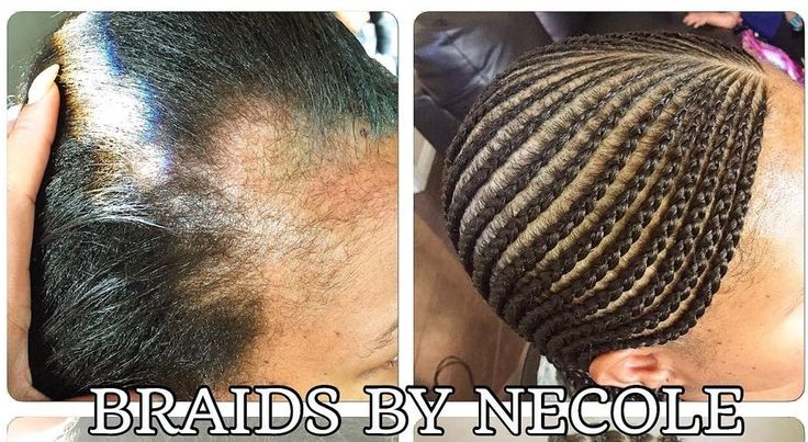 44 Best Alopecia Weave Images On Pinterest