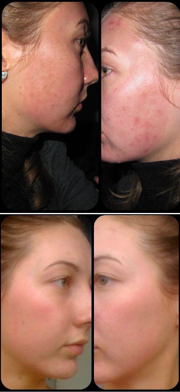 Trichloorazijnzuur peelings zijn iets diepere peelings. Ze geven een mooiere, frissere en egalere teint aan de huid. Ze worden gebruikt voor de behandeling van bruine vlekken en fijne huidrimpels. De sterkte van de peeling wordt aangepast aan de huiddikte. Deze peeling kan worden toegepast bij beginnende fijne rimpels, oppervlakkige acne littekens, door de zon ontstane pigmentvlekken en bij een huid met een grovere structuur.