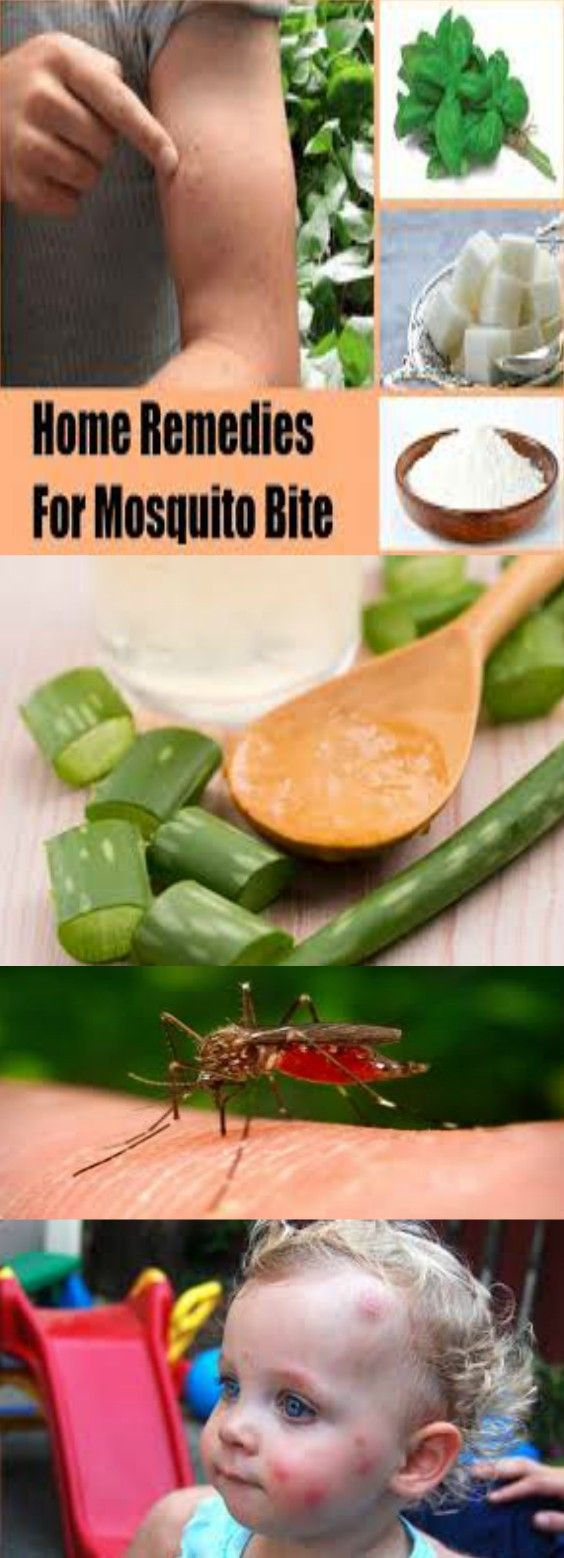 How to Get Rid of Mosquito Bites for Home Remedies