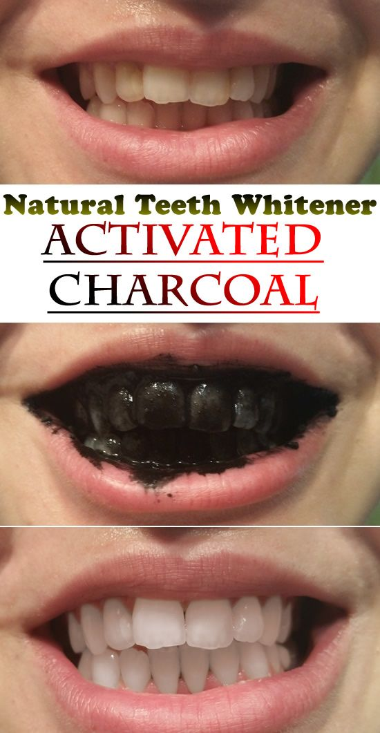 Activated Charcoal as a Natural Teeth Whitener