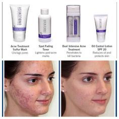 rodan and fields before and after our unblemish re…