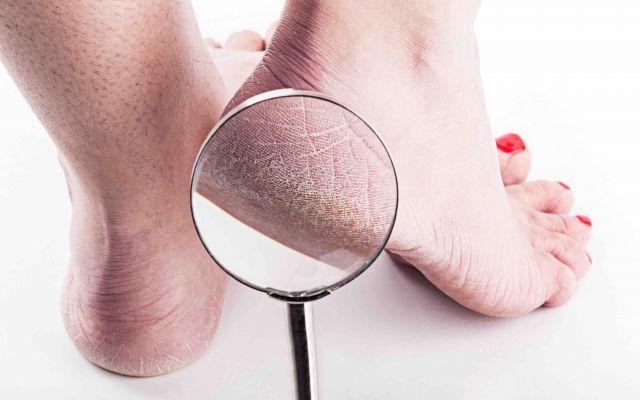 Secchezza dei talloni e dei piedi cosa fare? Quante volte vi siete trovati con i piedi e i talloni tutti screpolati e secchi? Vi siete mai chiest piedi salute estetica