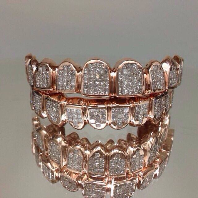Diamond Encrusted Rose Gold Grillz ...XoXo