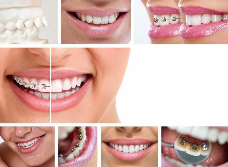 Orthodontics is the treatment of irregularities in the teeth and jaws,  including the use of various types of orthodontic braces.We provides  different types of braces for the teeth like invisible brace, clear  brace, ceramic brace and metal braces with affordable cost in Hyderabad