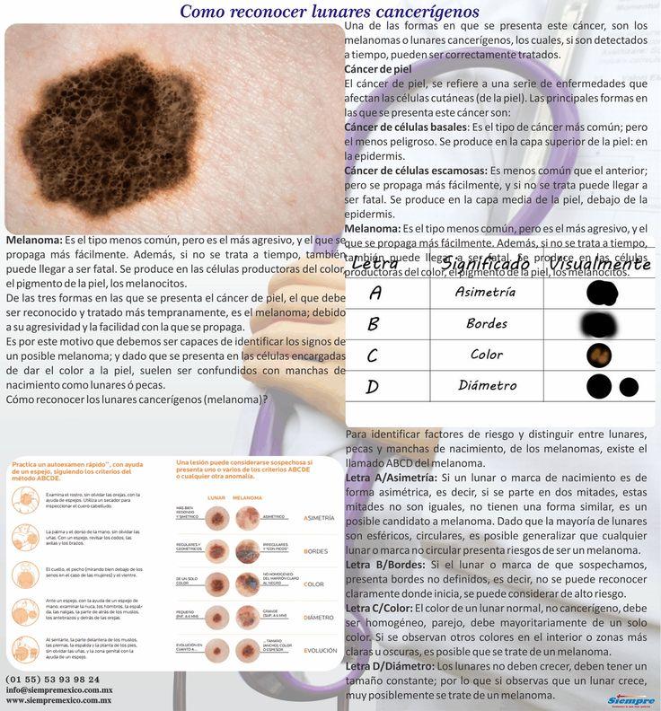 Como reconocer lunares cancerígenos