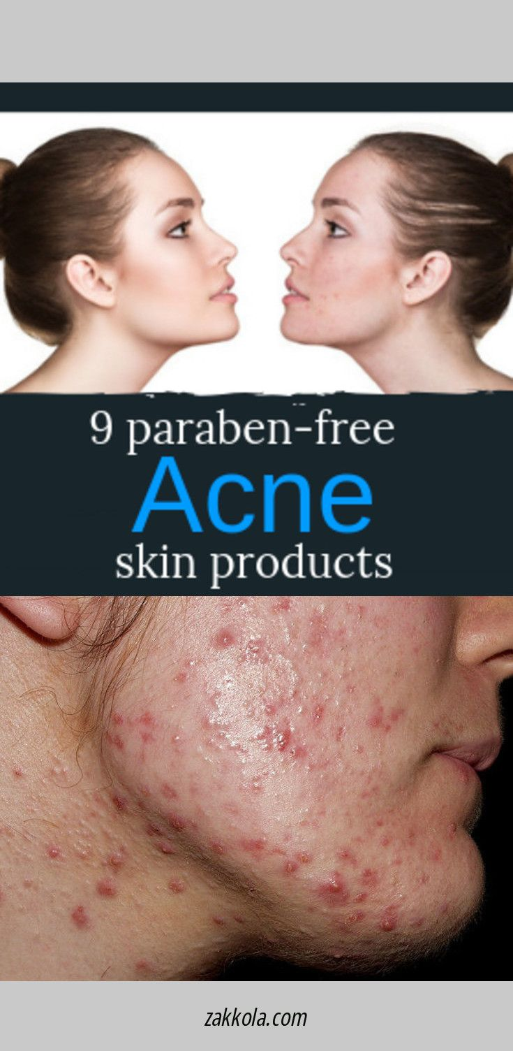 Look at the webpage to learn more about acne. Sim…