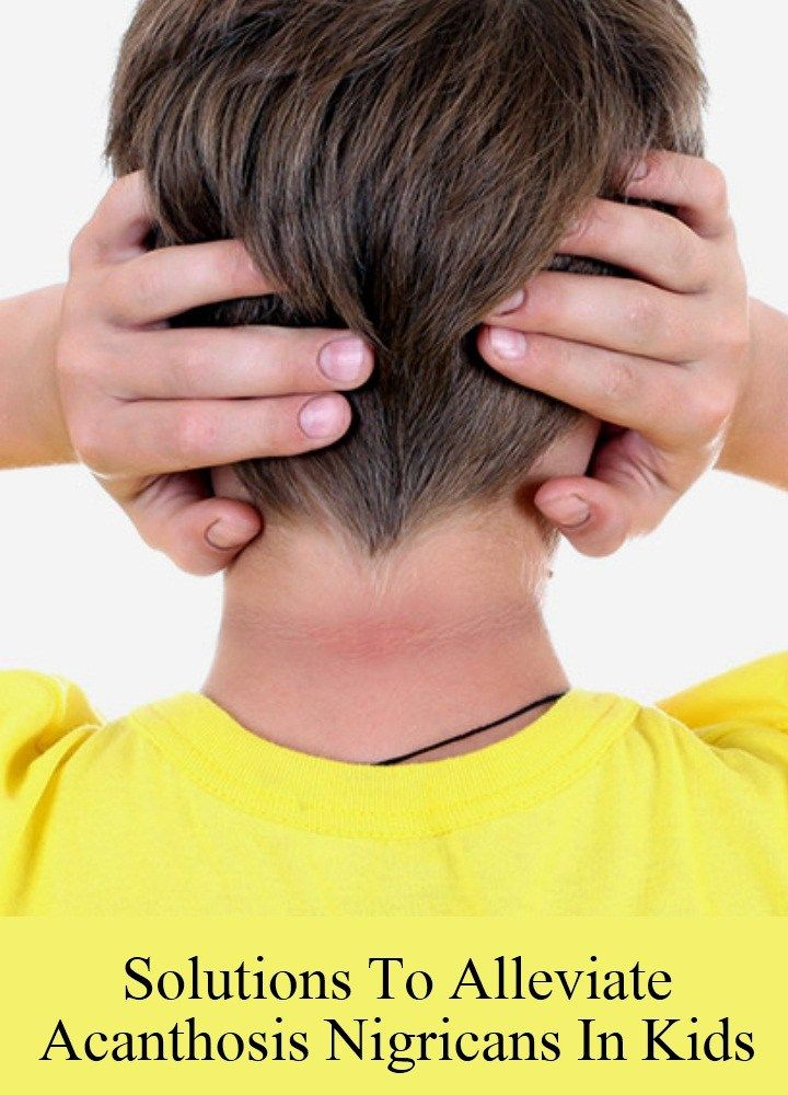 5 Solutions To Alleviate Acanthosis Nigricans In Kids