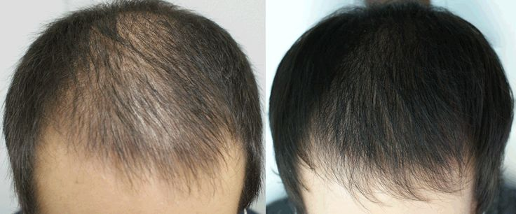 #prpclinic   Hair fall being  major problem everyone is looking for the best  treatment. Opt with our #Prp  treatment for the best result which is absolutely safe.
