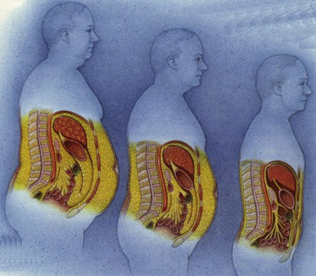 Obesidade abdominal - cuidandobemdemim   cuidandobemdemim