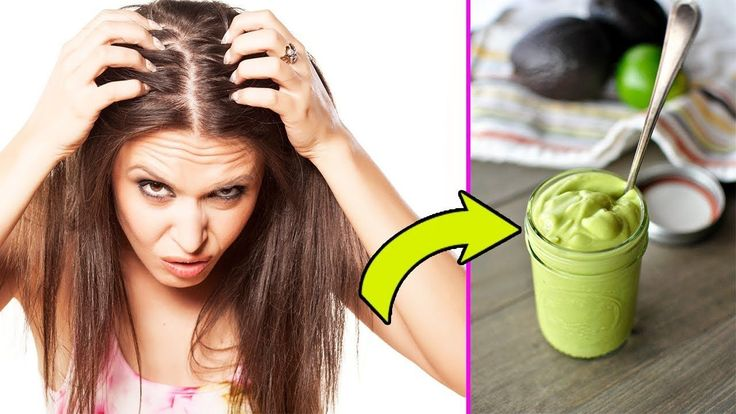 How To Get Rid Of Dandruff Permanently At Home   Dandruff Treatment - My Health Tube