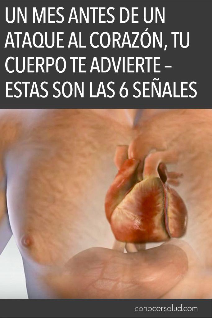 Un mes antes de un ataque al corazón, tu cuerpo te advierte – Estas son las 6 señales