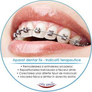 Aparat dentar fix
