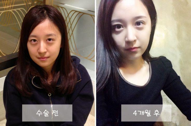 JW眼型矫正、隆鼻、面部脂肪移植手术前后。  猜猜她实际年龄是多大? 面部年轻化手术并不只适用于中老年人,像这位显老的MM,需要的也是面部年轻化手术,让她回到同龄人的时代:)
