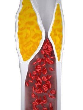 Gli alimenti che abbassano il colesterolo sono quelli che contengono acidi grassi insaturi ed una buona quantità di fibra solubile, buona per ridurre l'LDL.
