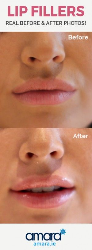 Lip Fillers Dublin - Before and After photos