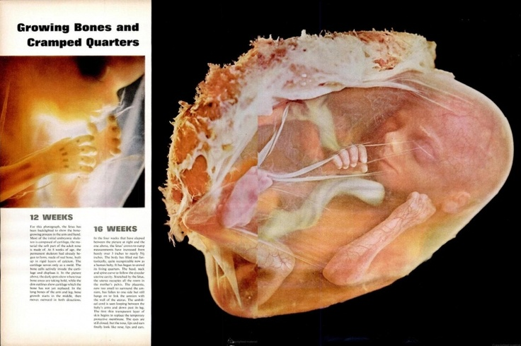 best lennart nilsson images choose life human page spreads from the lennart nilsson photo essay drama of life before birth