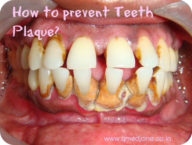 How can I prevent plaqueassociated gum disease?Brushing