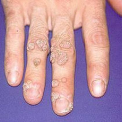 Top 14 Natural Cures For Warts