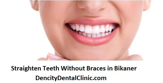 Straighten teeth without braces - we are very proud to provide teeth straightening that can be completed without braces and with braces in Bikaner, Rajasthan. Using porcelain dental veneers instead allows us to offer a good alternative method of teeth straightening, meaning even the most crooked or uneven smile can be made to look incredible in a good way and less time. You can get these dental services at Dencity Dental Clinic in Bikaner, Rajasthan.