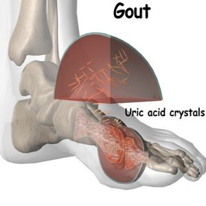 best food for uric acid patients zyloric reduce uric acid sudden ankle pain gout