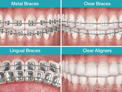 The science—and practice—of straightening teeth has come a long way since the start of the 21st century. Braces are less noticeable than ever before, and clear aligners are gaining popularity. #Dental #Orthodontics #Braces