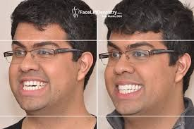 http://www.faceliftdentistry.com  Surgeries always sound scary and few might develop phobia but does that mean you can't get your jaw corrected? No, with Dr. SAm Muslin's Overbite Correction without surgery, you can get it.  #OverbiteCorrectionwithoutsurgery