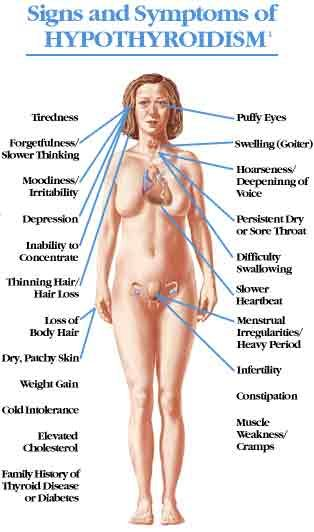S/S of Hypothyroidism.