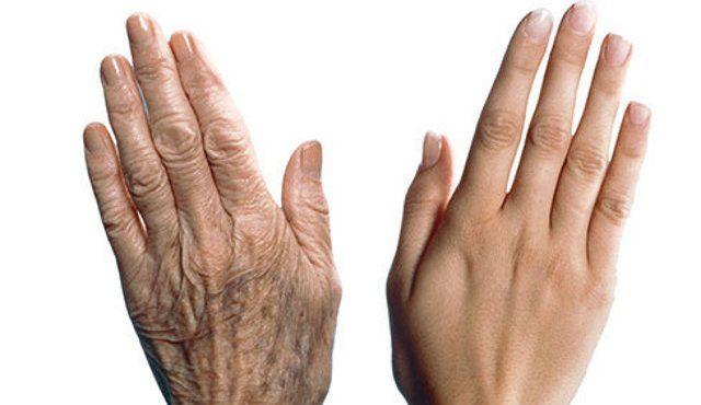Кожа рук требует особого ухода, ведь они всегда на виду. Не зря говорят, что по рукам женщины можно определить ее возраст.Вернуть рукам молодость не так сложно, и мы научим Вас как! Кожарукимеет очень небольшую жировую прослойкуи, следовательно волокна коллагена и эластина начинают разрушаться, эффект старения становится более заметным.Постоянно мытье и воздействие различных химических веществ могут