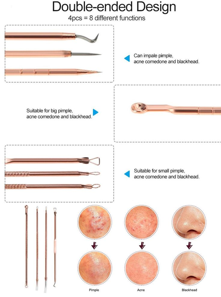 Amazon.com : IBEET Blackhead Remover Kit, Comedone Extractor Tool, Anti-microbial Double-side, Treatment for Blemish, Whitehead Popping, Zit Removing for Risk Free Nose, Rose Gold, 4 PCS : Beauty