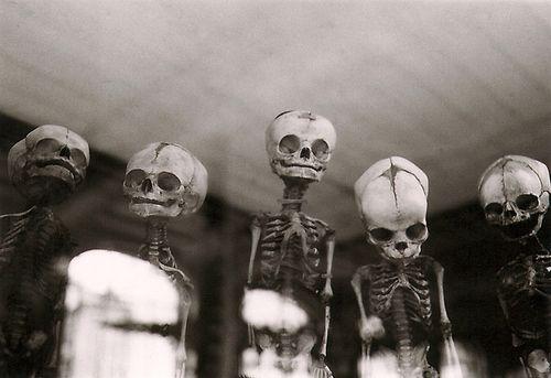 Skull, Dark Heart, Bones, Baby Skeletons, Macabre, Design Bags, Creepy Photos, Infants, Old Photos