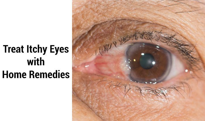 Home Remedies For Itchy Eyes Itchy Eyes Itchy Eyelids Allergy Eyes