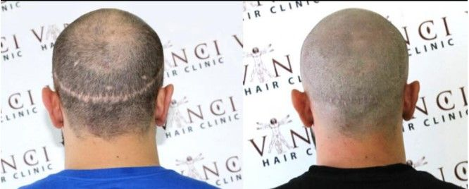 What happens when hair transplants go wrong?    Unsightly hair transplant scars can ruin a person's´life. Being able to hide the scar can improve self confidence and on a cosmetic level allow different hairstyle options.   Micro Scalp Pigmentation is a medical grade treatment that can simulate long and shave hair on the right candidate. Great result from Vinci Hair Clinic Beirut! lebanon #hairloss #MSP #micropigmentation #pigmentation #hairlosslebanon #mesotherapy #laser