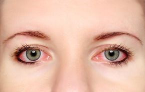 Tratamientos naturales que ayudan a tratar la conjuntivitis La conjuntivitis es una infección del ojo que involucra la esclerótica -o revestimiento exterior de la parte blanca del ojo-; los síntomas incluyen enrojecimiento, picazón y sensibilidad a la luz, y también lagrimeo excesivo, o flujo espeso.