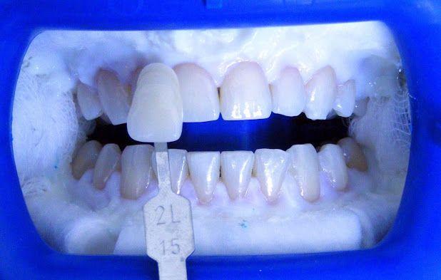 Sbiancamento professionale per Voi all'estero ! Vi invitiamo a vedere  nostra clinica e dentista qui ! Contattaci subito in Romania! !http://www.intermedline.com/dental-clinics-romania/ #clinicadentale #clinicadentaleinRomania #clinicaodontoiatrica #clinicaodontoiatricainRomania #sbiancamentodentale #sbiancamentodentaleinRomania #sbiancamentodidenti #sbiancamentodidentiinRomania #dentista #dentistainRomania #turismodentale #turismodentaleinRomania