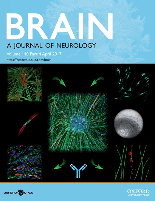 Rewiring the primary somatosensory cortex in carpal tunnel syndrome with acupuncture